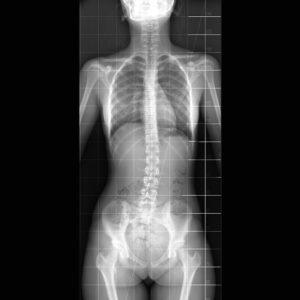 Scoliosis-x-ray-wide GAMMA